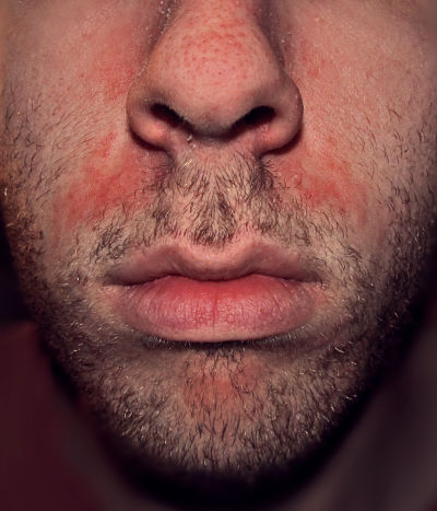 cuidarte-bio-dermatitis-seborreica